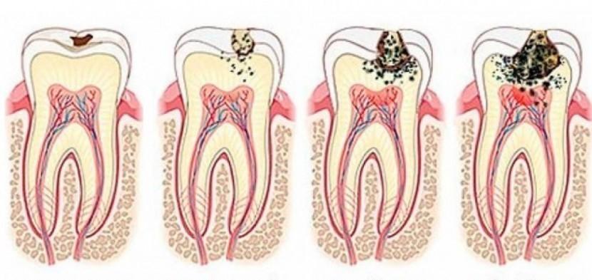 Házi megoldás a fogszuvasodás megelőzésére