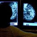 A mellrák kiújulása 7 hónappal korábban kimutatható egy egyszerű vérvizsgálattal