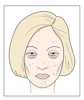 vörös foltok hálózódnak az arcon lotion clean body from pikkelysömör érdekében