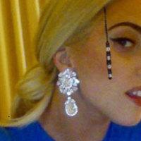 Lady Gaga is beperelte Kozsót
