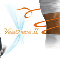 Kipróbálom a Velashape-et !