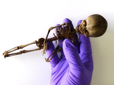 foetus_skeleton.jpg