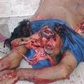 Gyomorforgató balesetek - képek