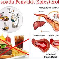 Apotik Yang Menjual Obat Kolesterol
