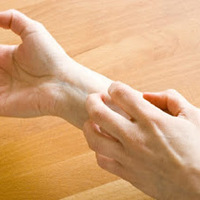 Jual Obat Bersih Darah Untuk Penyakit Gatal Di Tangan