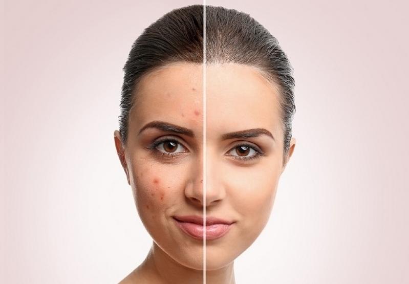 10 tipp a pattanásmentes arcbőrért