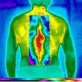 Mi a termográfia (thermographia)?