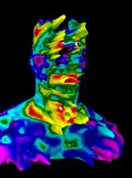 szomatoinfra-sugarzas.jpg