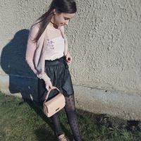 Hogyan viselj egy mintás harisnyát? - Első Tavaszi Outfit