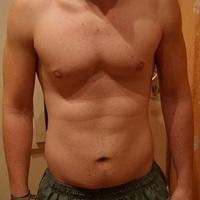 mit csináljak a megnyúlt, lógó bőrömmel gyors zsírveszteség, fogyás után?