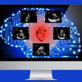 Ember-gép vegyes csapat diagnosztizálja a tüdőgyulladást