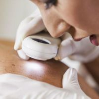 Egy MI gyakorlott bőrgyógyászoknál is jobban diagnosztizálta a melanómát