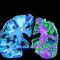 Algoritmus jelzi előre az Alzheimer-kórt