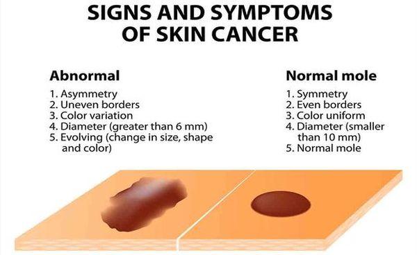 melanoma0.jpg