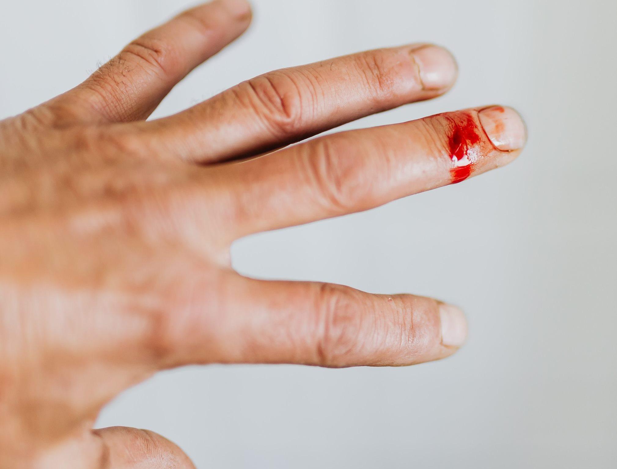 crop-man-hand-with-cut-finger-wound-carolina_grabowska_pexels_2.jpg