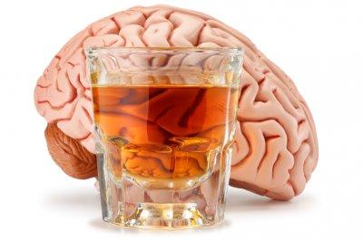 alcohol-brain.jpg
