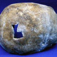 Sikeres agyműtétek - kőpengével és pálinkával