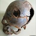 Valódi mészárlás folyt – 3200 éve