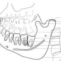Ramus mandibulae