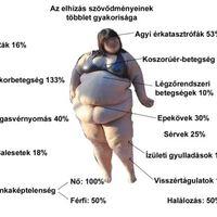 Az elhízás okai