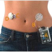 Inzulinkezelés – az inzulin adagolása  (II. rész)