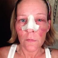 Megrázó selfie-k a családon belüli erőszakról
