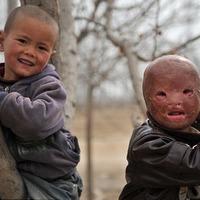 Az arc nélküli fiú