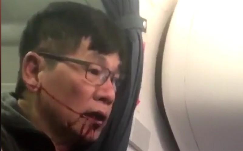 united_airlines_lerangatott_ferfi.jpg