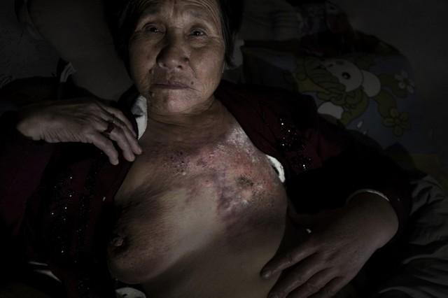 kínai rákos nő.jpg