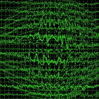 Az epilepszia fajtái