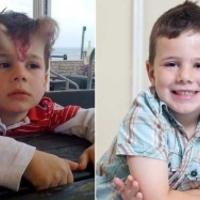 Ördögszarvai nőttek az ötéves kisfiúnak