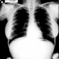 Eladták Marilyn Monroe röntgenképét