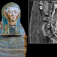 Rákos volt a 2250 éves lelet