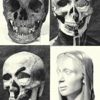 Plasztikai műtét a XVII. századból
