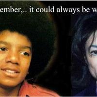 Lássuk, hogy néz ki Jackson az 51. arcműtét után!
