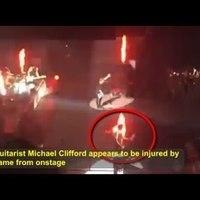 Komoly baleset érte a zenészt koncert közben