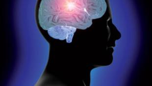 Kolumbiai gerillák agyát vizsgálták