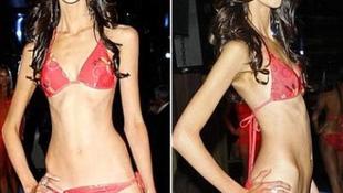 Kóros alultápláltsága miatt esett ki a Miss Universe egyik versenyzője