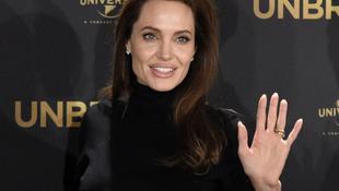 Újabb súlyos műtéten esett át a színésznő