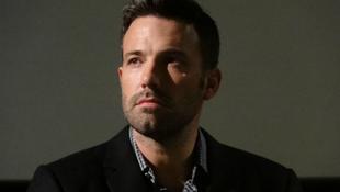 Ben Affleck megsérült a Batman forgatásán