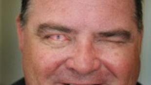 Szenzáció: fogat ültettek a szeme helyére!