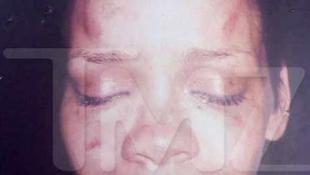 Rihanna arcát szétverték a Grammy előtt