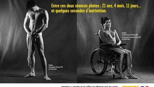 Fotók a modellről autóbaleset előtt és után