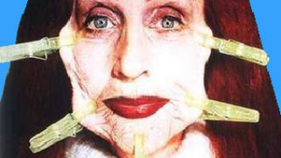 Döbbenetes arcplasztika: ilyen volt, ilyen lett