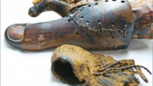 Megvan a világ első protézise