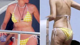 Sharon Stone cellulitisszel hódit