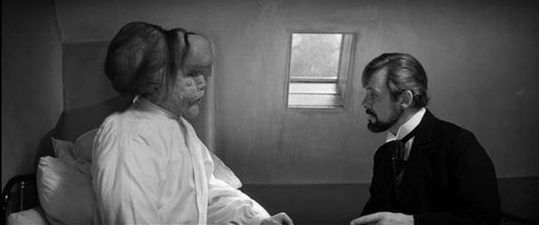 John Hurt és Anthony Hopking Az elefántemberben