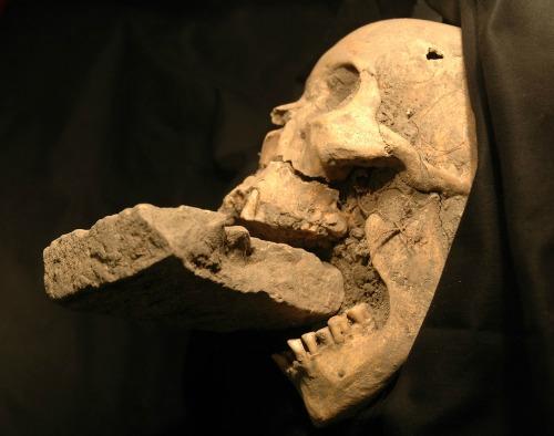 Velence Vámpírjának koponyáját egy tömegsírban találták meg (Fotó: Matteo Borrini)
