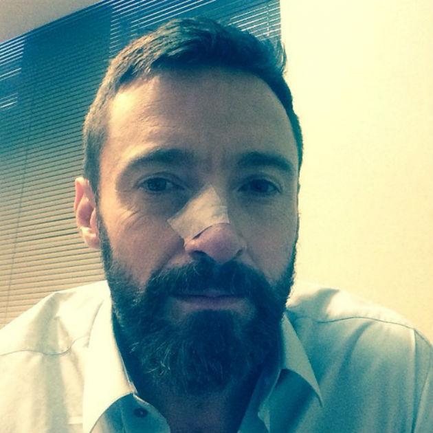 A műtét után (Fotó: Instagram/Hugh Jackman)