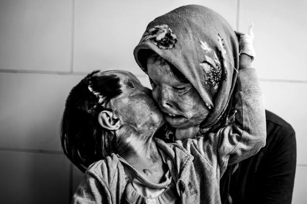 Somayeh Mehri (29) és lánya, Rana Afghanipour (3) - miután egy savtámadásban eltorzult az arcuk, senki nem közeledik hozzájuk